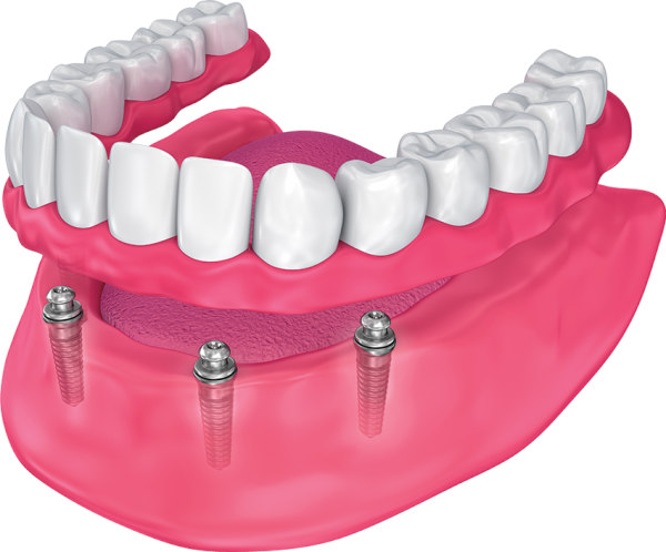 denture stabilization in lilburn ga