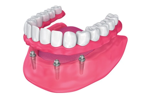 implant supported dentures lilburn ga
