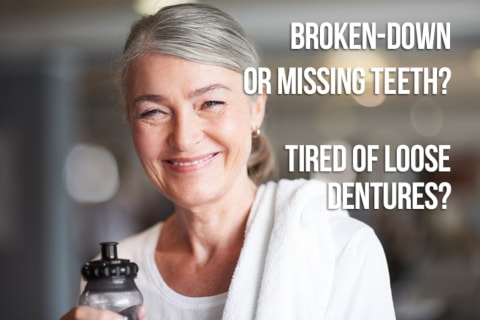 dental implants lilburn ga