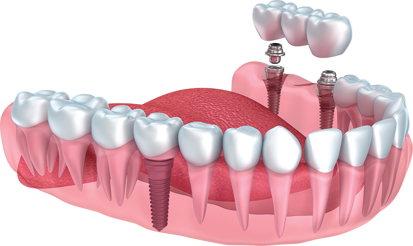 Implant-Supported Dentures in Lilburn, GA