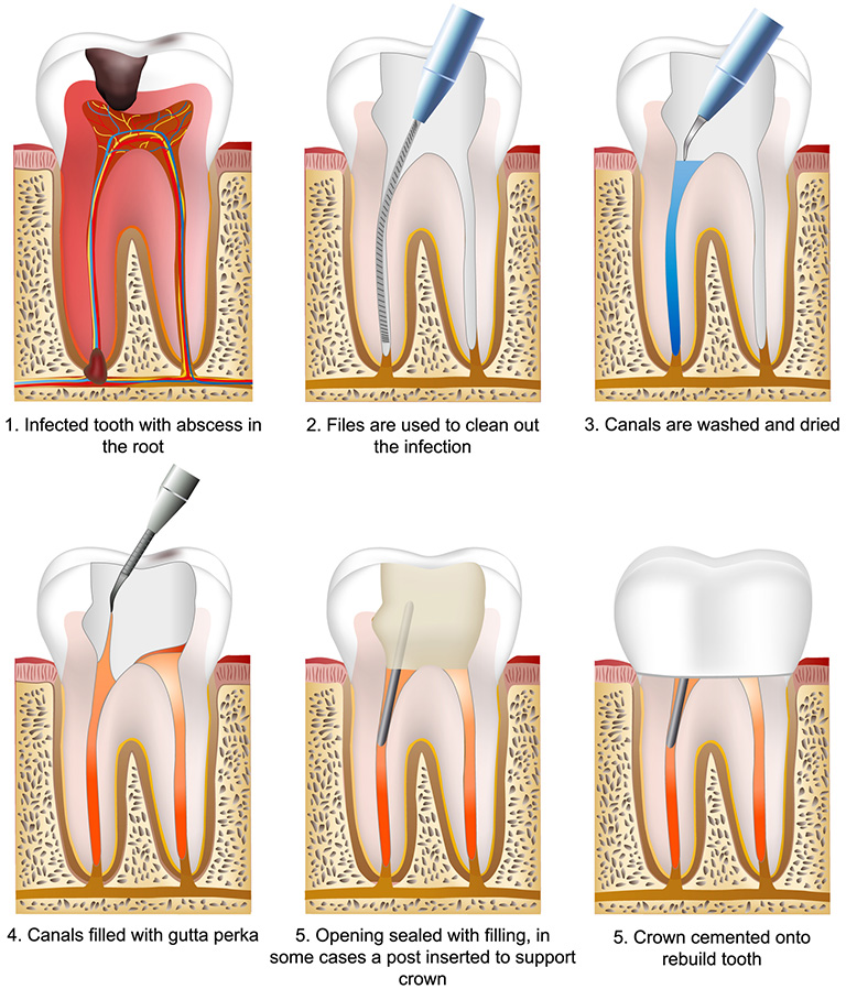 Root Canal Therapy in lilburn ga